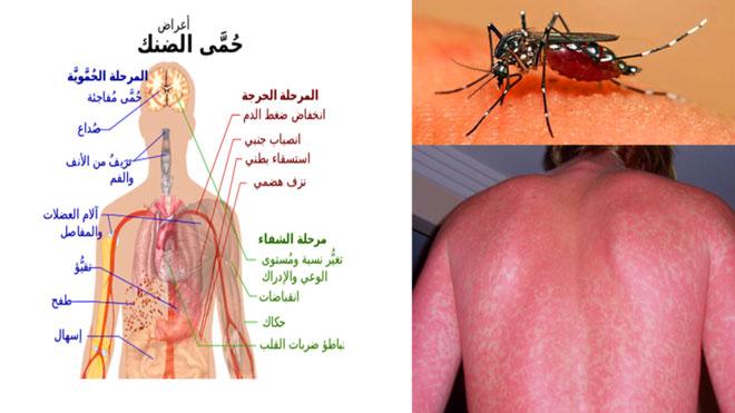 صحيفة الأيام حمى الضنك ليس مرضا لصفائح الدم وأخطاء التشخيص تزيد من الوفيات