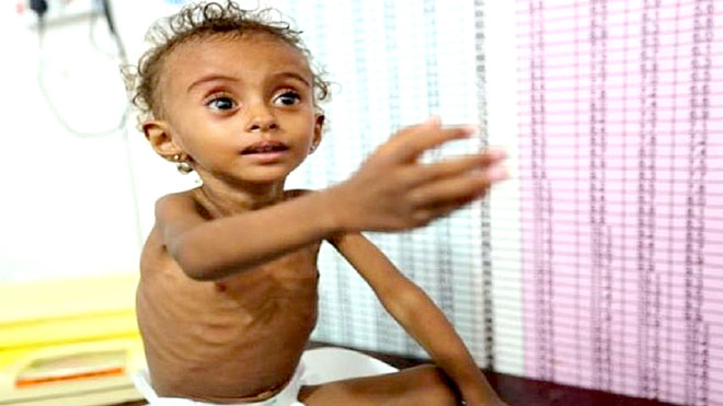 طفل يعاني من مرض  سوء التغذية