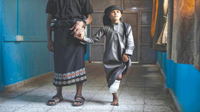 طفل يمني تعرضت قدمه للبتر بعد انفجار لغم