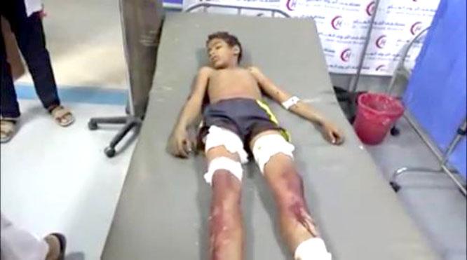 عبوة ناسفة تقتل طفلاً وتصيب شقيقه بالحديدة