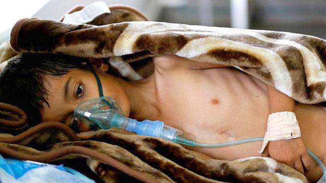 الأمم المتحدة: الإصابة بوباء الكوليرا في اليمن بلغت هذا العام أكثر من 460 ألف حالة
