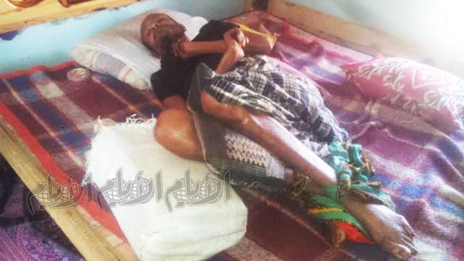 أحد المواطنين أصبح طريش الفراش (مشلولاً) نتيجة إصابته بالرقبة