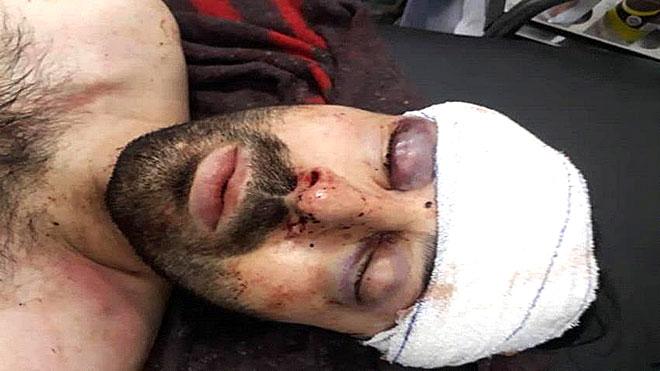 الضحية المواطن التركي