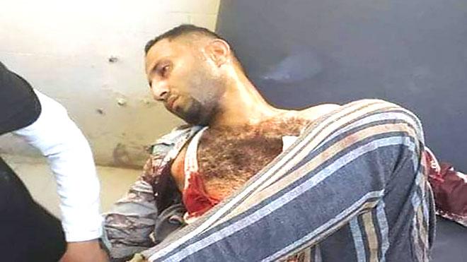 الشاب فتحي العربي متأثر بإصابته